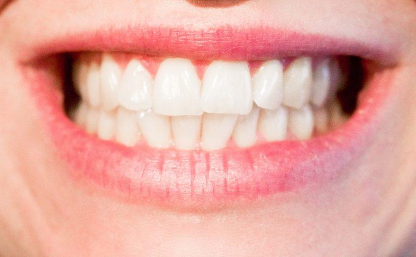 Obecna technika stosowana w salonach stomatologii estetycznej zdoła spowodować, że odzyskamy prześliczny uśmiech.